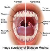 hpv causes sore throat