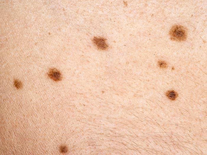 cancer de piele - Traducción al español – Linguee