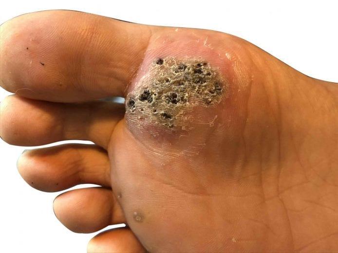 Wart on foot causing pain,