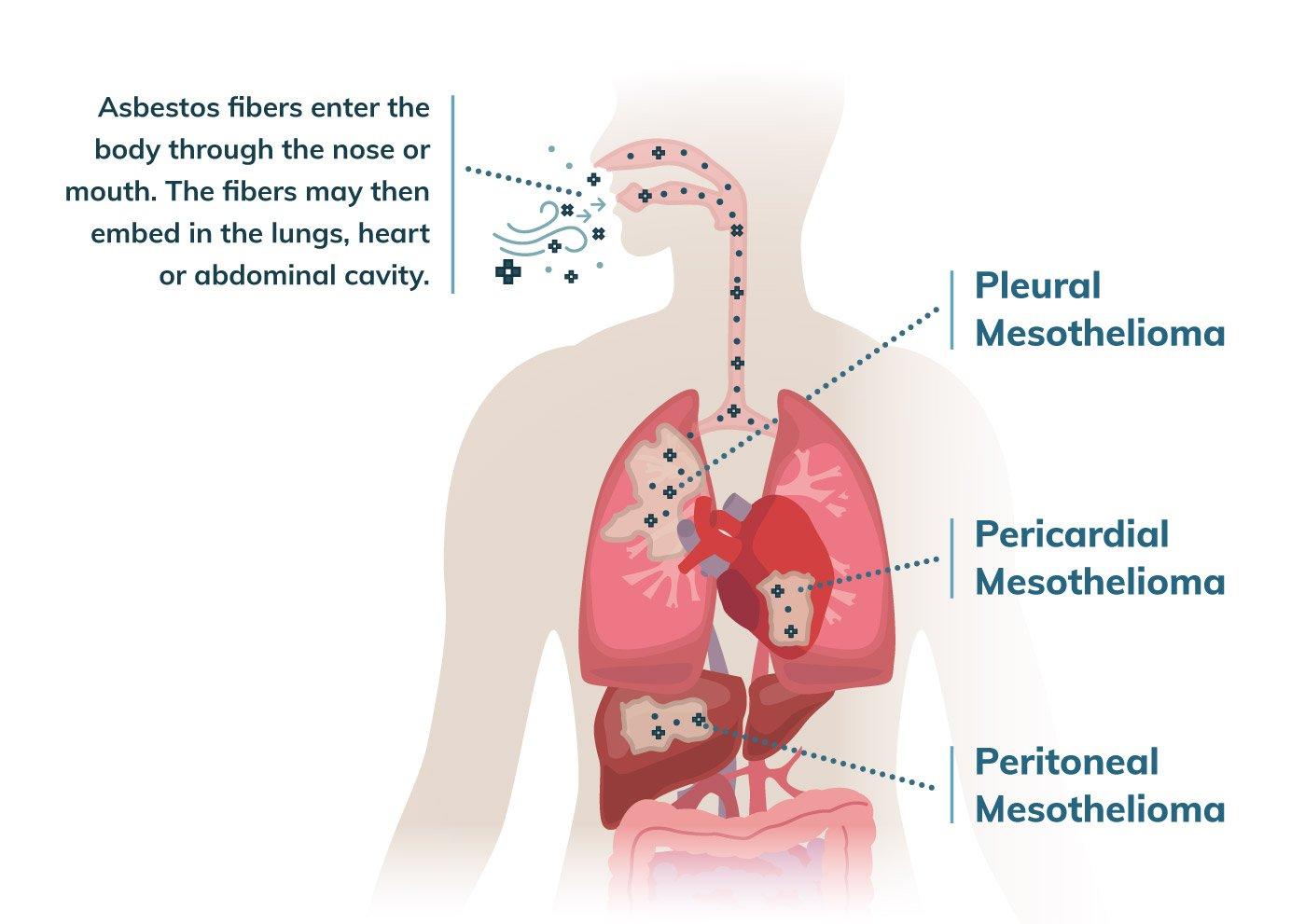 constipație din viermi condiloamele să trăiască bine
