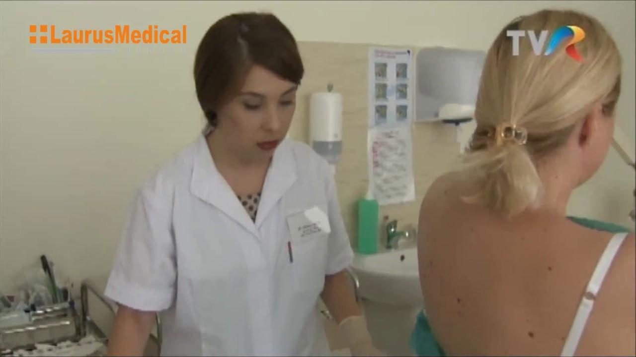 papiloame pe piele cauze și tratament Virusul HPV cum se tratează
