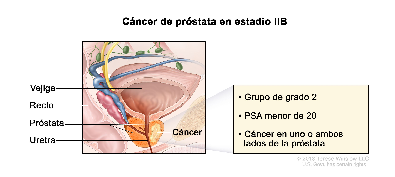 Cancer peritoneal fase 4