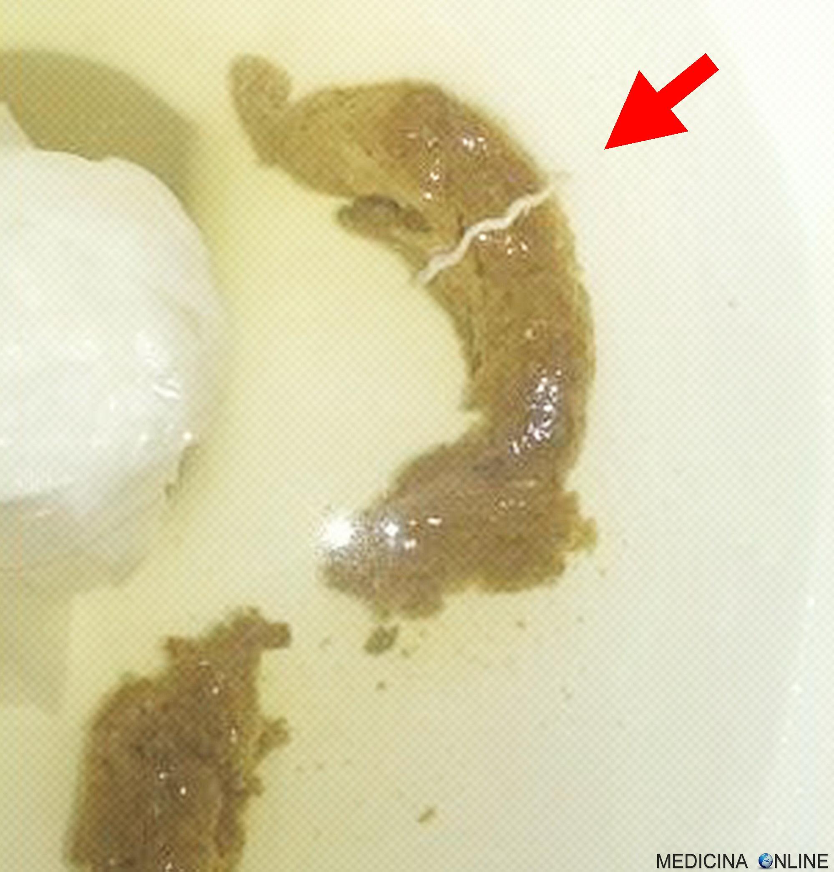 rimedi naturali per ossiuri negli adulti clinici de îndepărtare a verucilor genitale