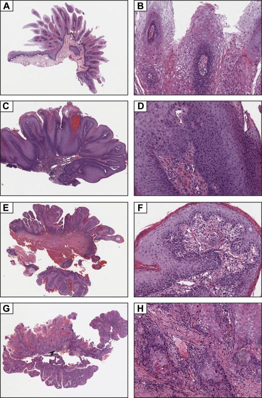 Papilloma e condiloma differenze, Papiloma palpebral perros, Squamous papilloma vs condiloma