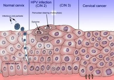 human papilloma changes hpv virus und feigwarzen