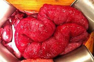 peritoneal cancer from colon