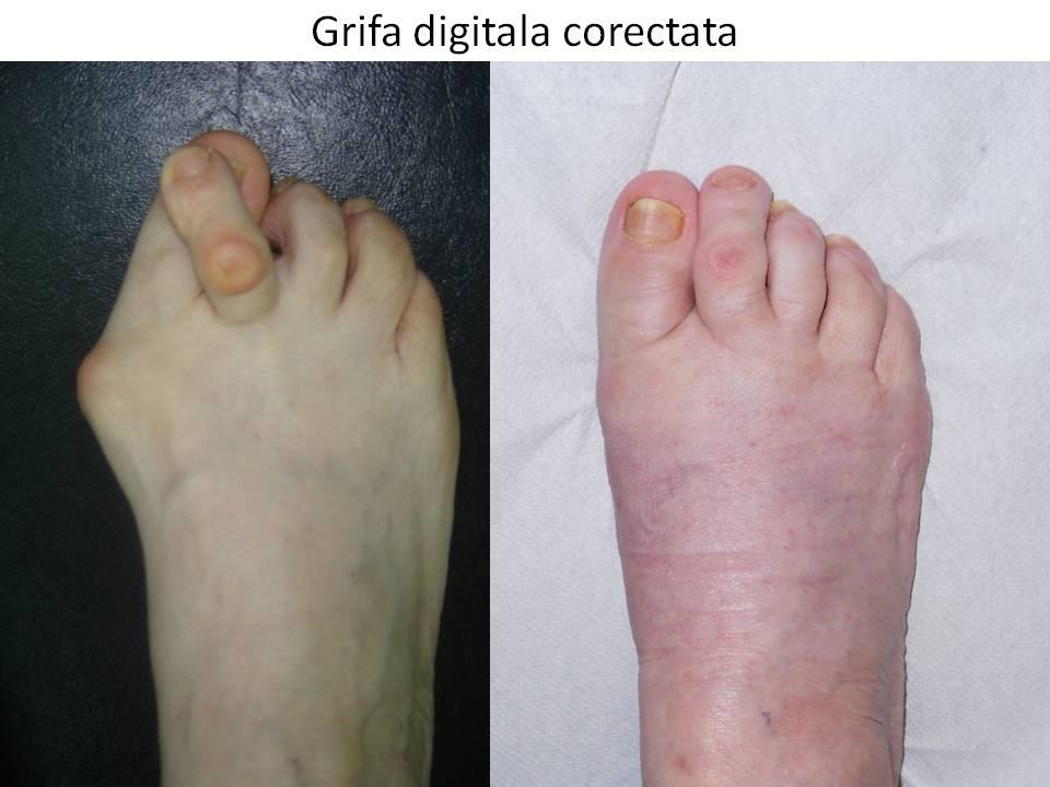 + Best deget images in | deget, sănătate, tratament de unghii