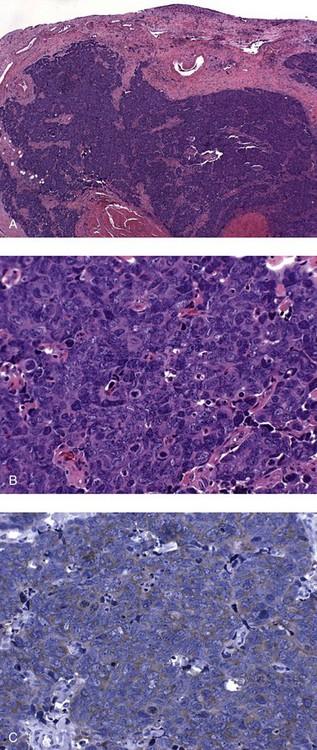 inverted urothelial papilloma p53 cum să scapi de papiloame în jurul ochilor