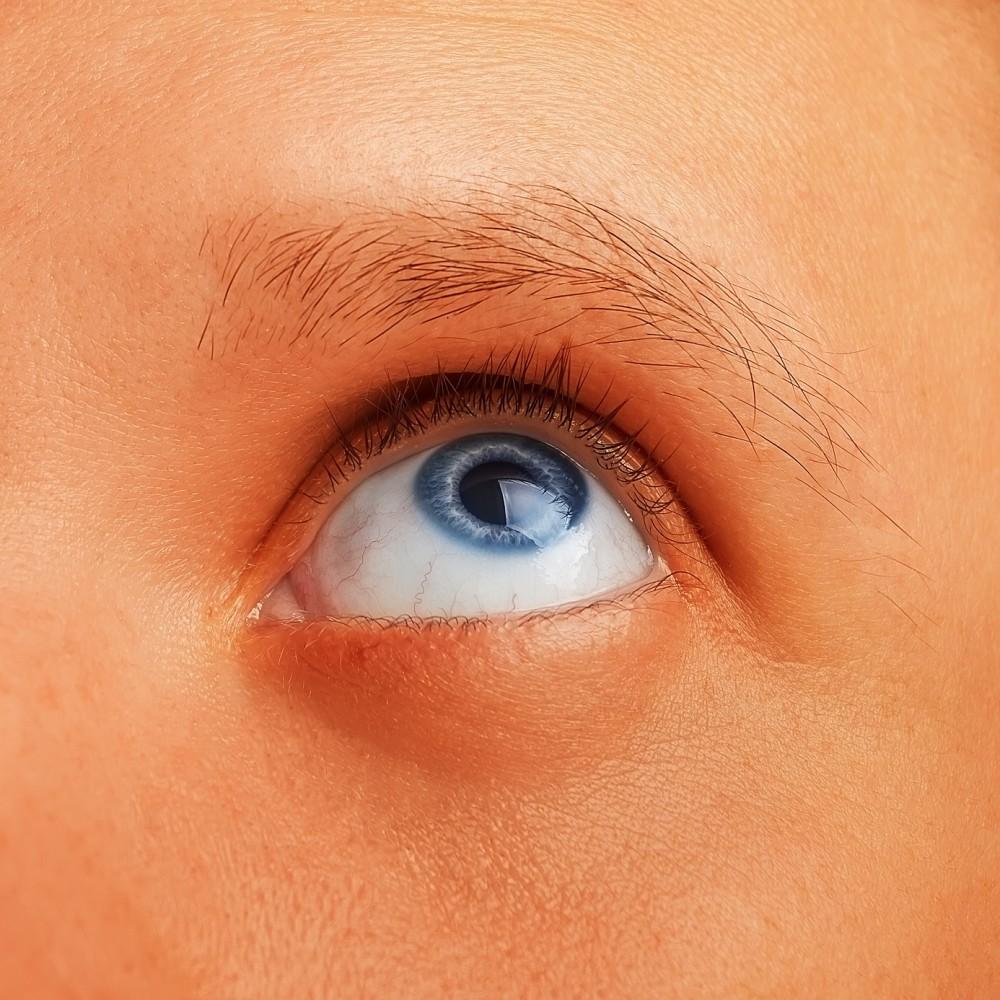 Papilome pe pleoape și ochi. Cum să le eliminați? - Sarcom June