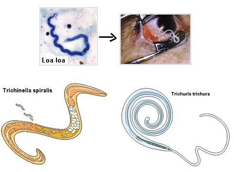contoh hewan filum nemathelminthes cancer and abdominal wall
