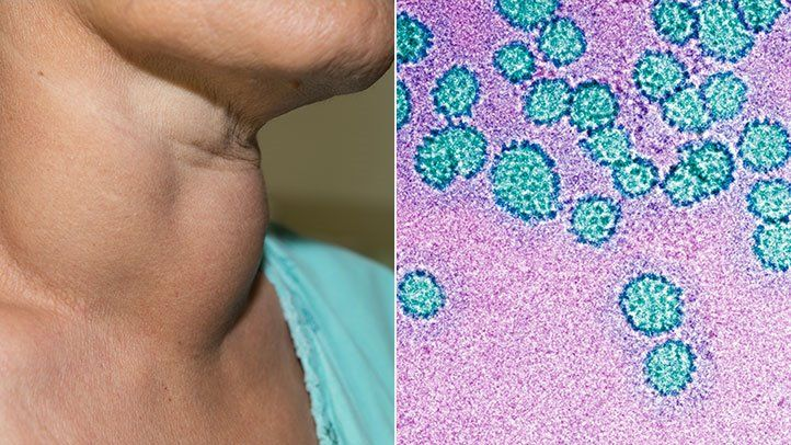 Hpv positive throat cancer treatment. Încărcat de
