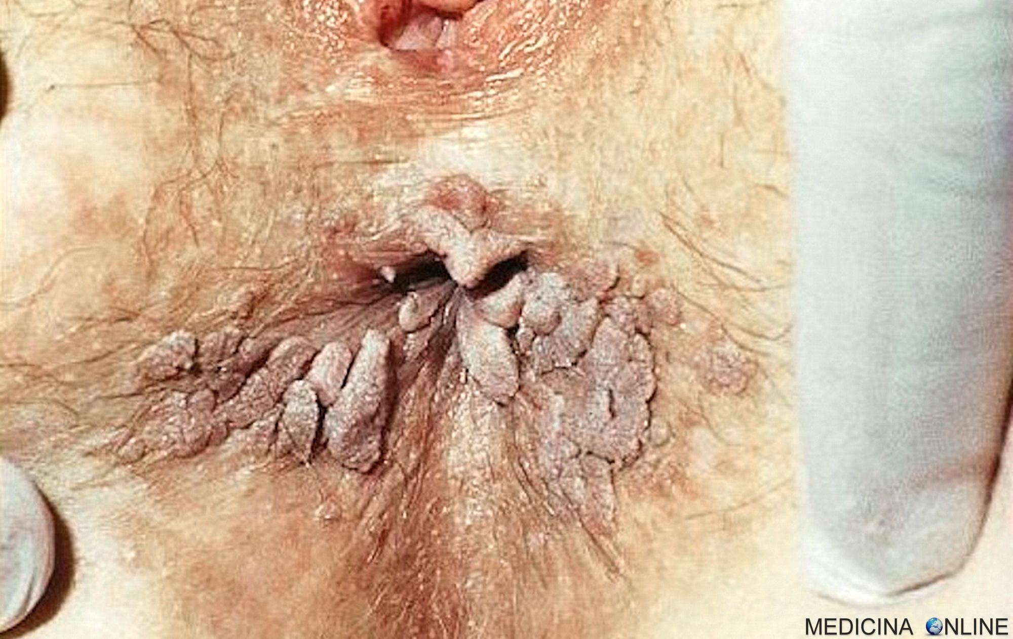 Papilloma virus uomo ano. Papilloma virus uomo recidive