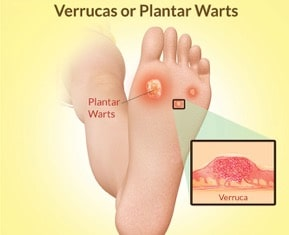 Hpv warts on feet. Hpv virus and warts on feet. Istoricul fișierului