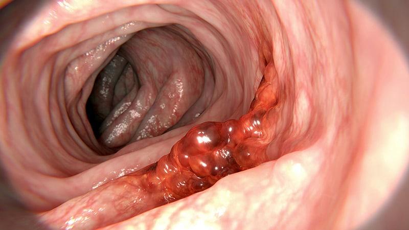 Human papillomavirus and colon cancer - coboramlaprima.ro