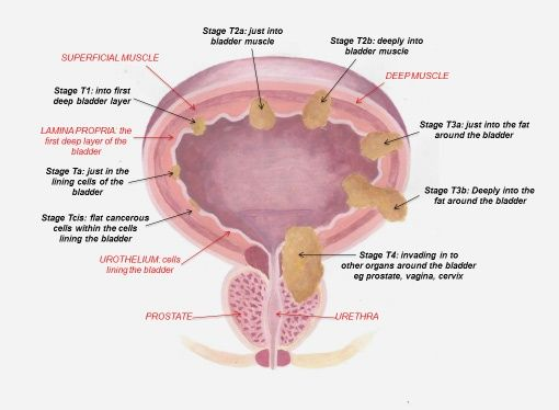 Papillary lesion of bladder Punct de lipitori overlay varicele