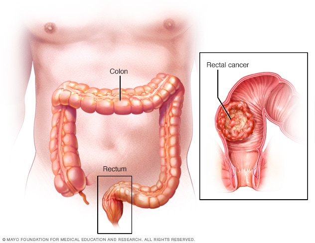 rectal cancer lump condilom bombat
