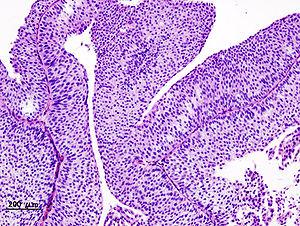 Papillomas bladder tumors. Papillomas bladder tumors