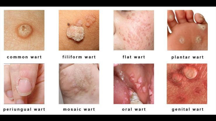 Creams for hpv genital warts - Hpv warts number
