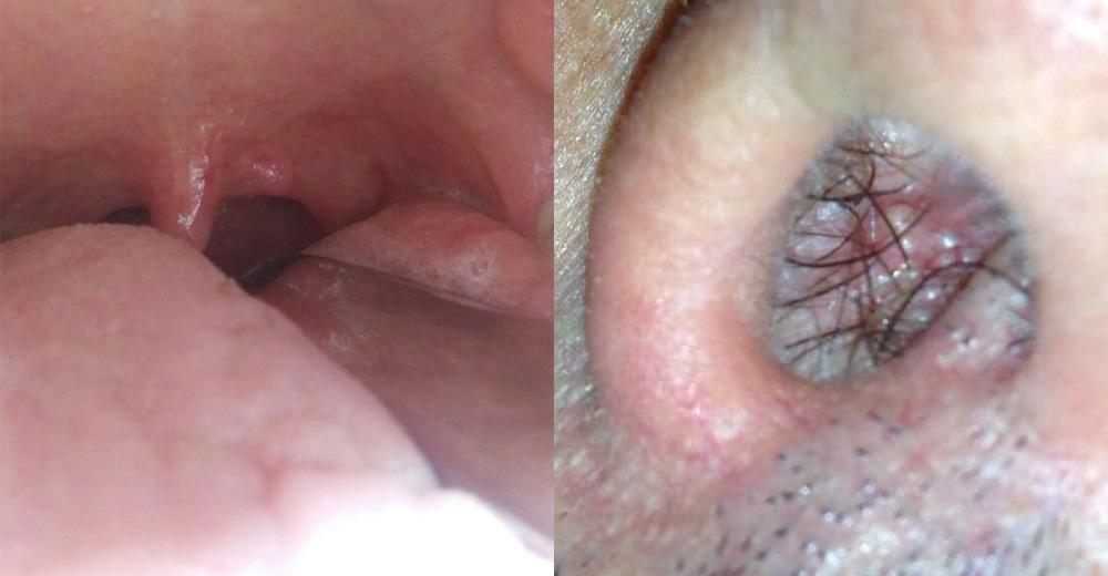 papilloma lesioni
