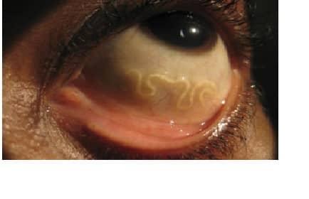 Tratarea viermilor în ochi Viermișori. Află Cum Poţi Scăpa De Paraziții Intestinali   Libertatea