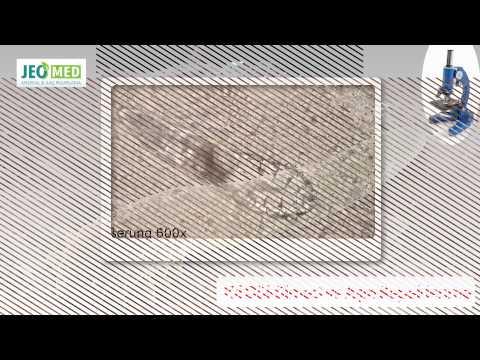 uramische toxine îndepărtarea viermilor din corp