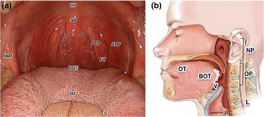 este virusul papilomului uman tratat hpv related throat cancer prognosis