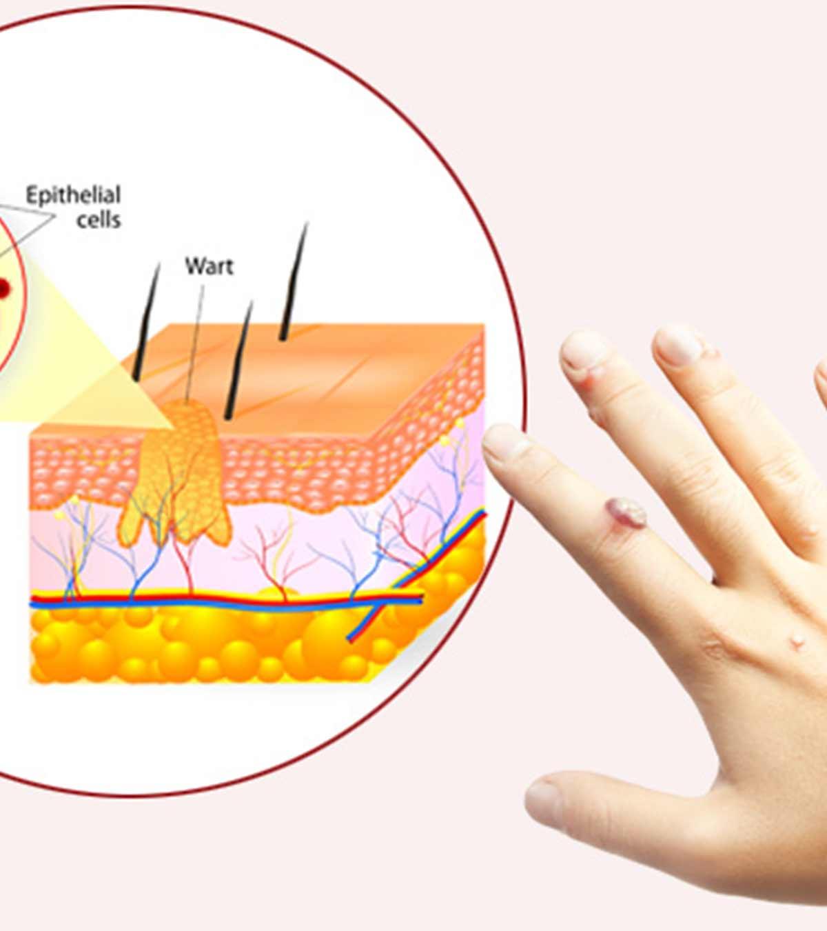 hpv szemolcs lezer simptome de ascită la om