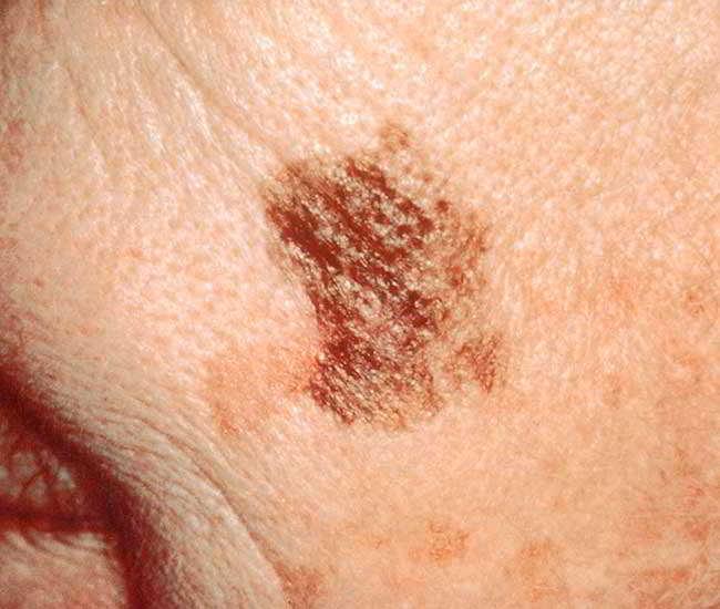 Semnele si simptomele cancerului de piele | Regina Maria