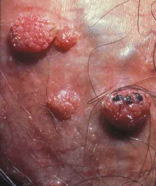Traitement pour papillomavirus Syphilis - Planete sante