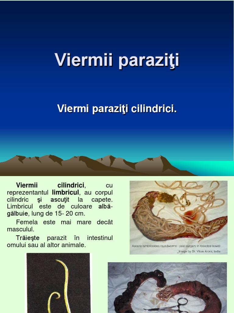 sinonasal inverted papilloma icd 10