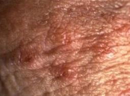 negi genitale cauza bolii