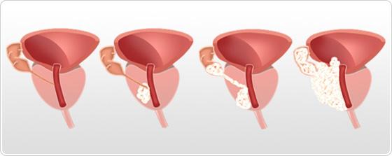cancer de prostata ultima etapa hpv tongue bumps