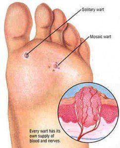 Wart on foot sole, Verruca foot sole