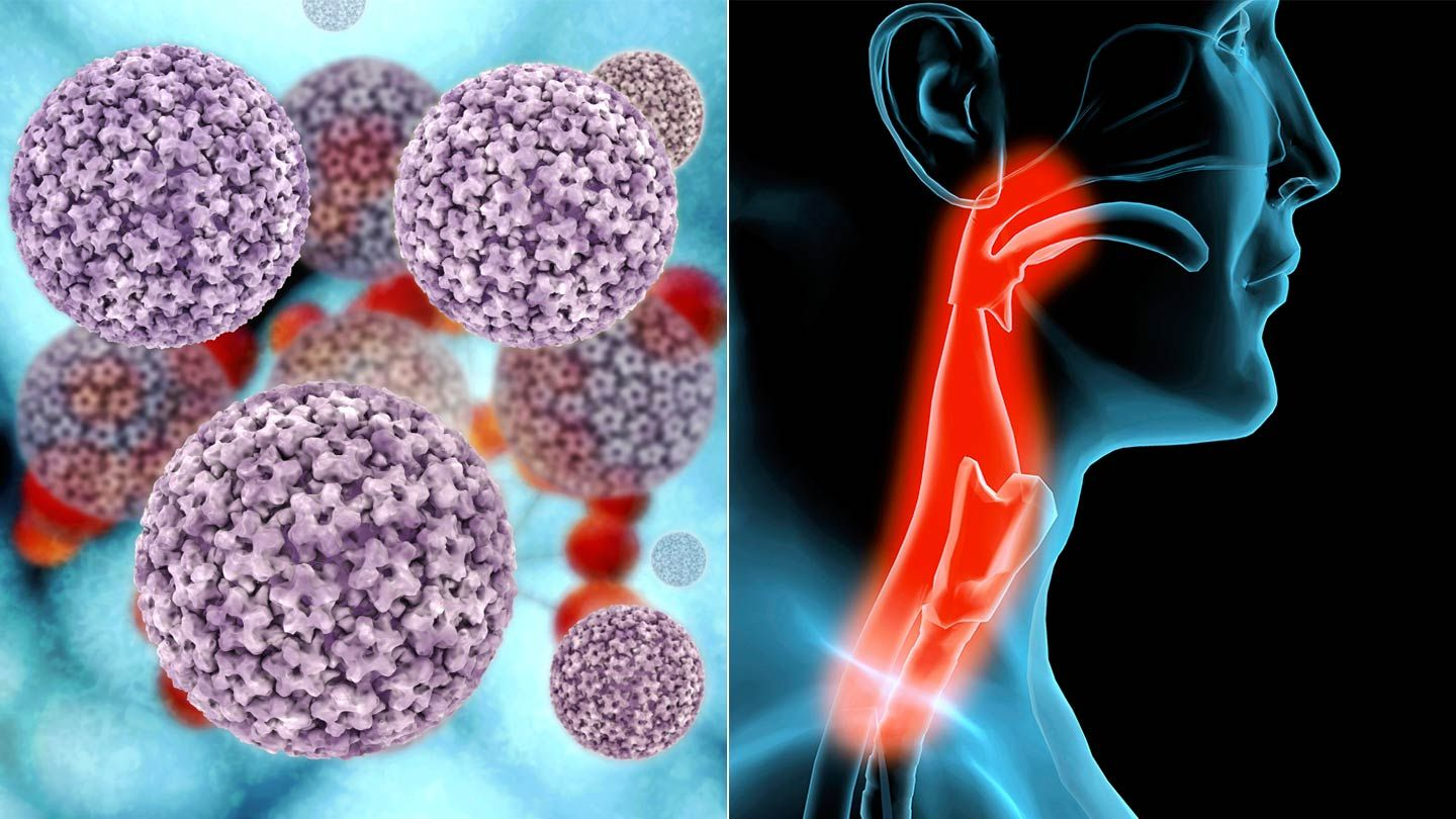 Causes of hpv throat cancer. Virusul HPV, asimptomatic, Hpv 16 causes throat cancer