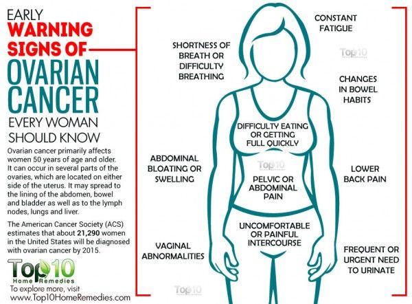 ovarian cancer leg swelling
