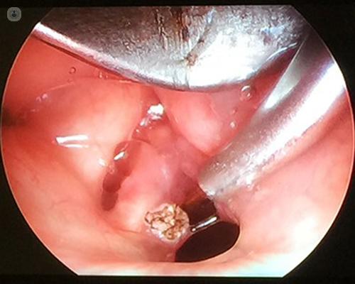 terapia giardia duodenalis papilloma of nostril