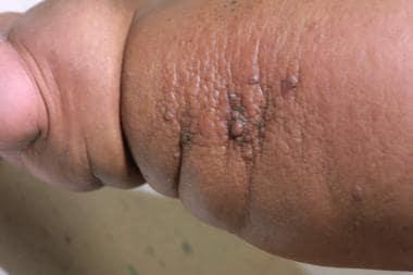 Papillomatosis atypia. Papilomas cancer hiperplazie scuamoasă Papilloma with focal atypia