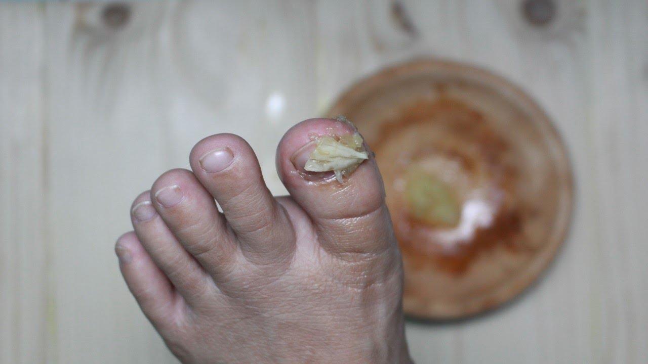 Helminths sunt viermi și paraziți ai picioarelor