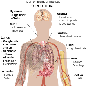 Paraziți în tratamentul plămânilor umani. Cum se dezvoltă paraziţii