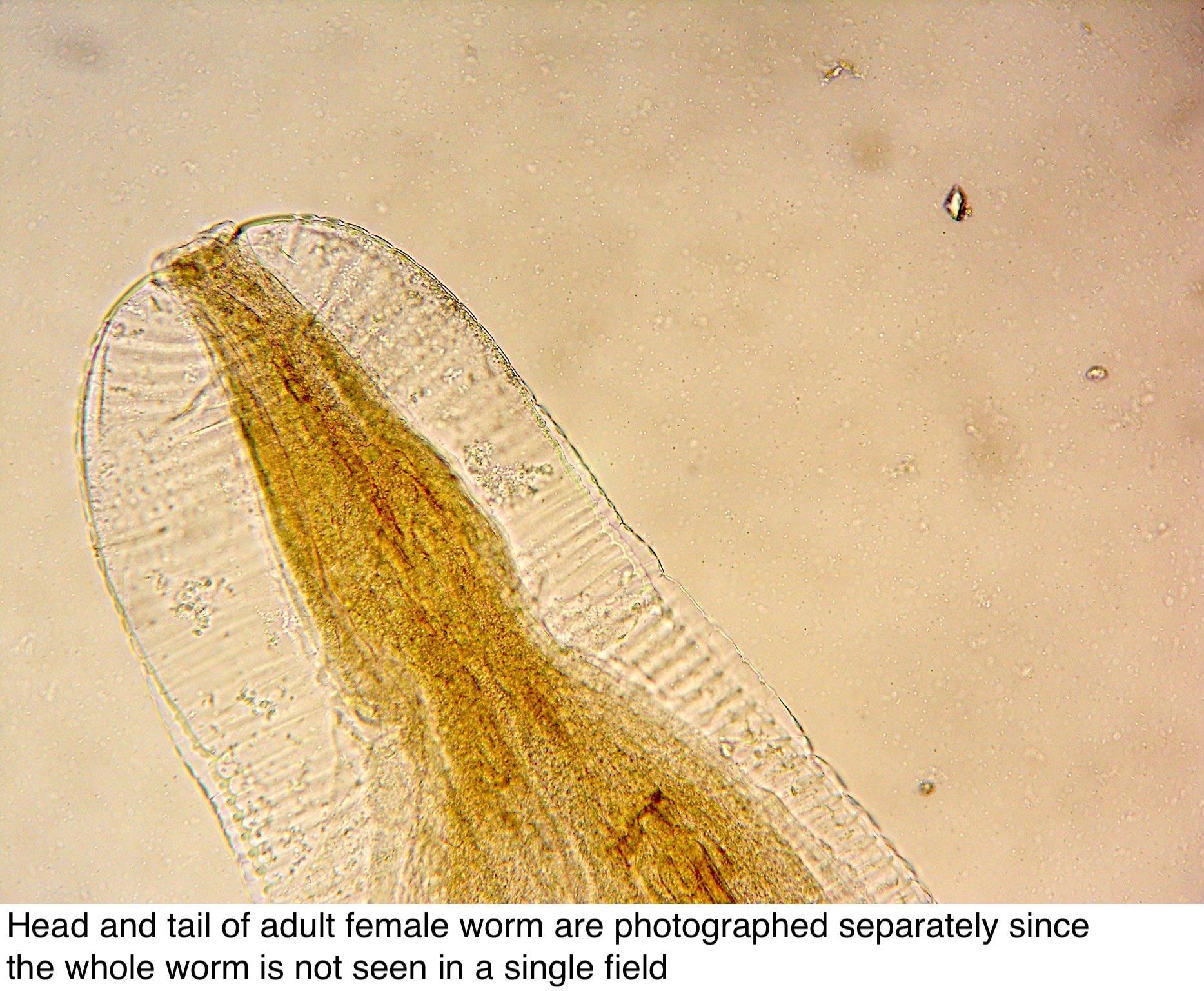 enterobius vermicularis sintomi o scurtă descriere a viermei