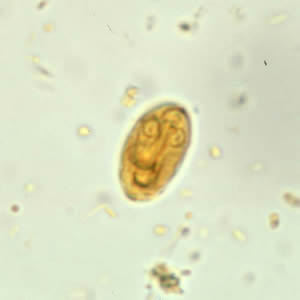 chisturi giardia poze papilloma virus con lesioni