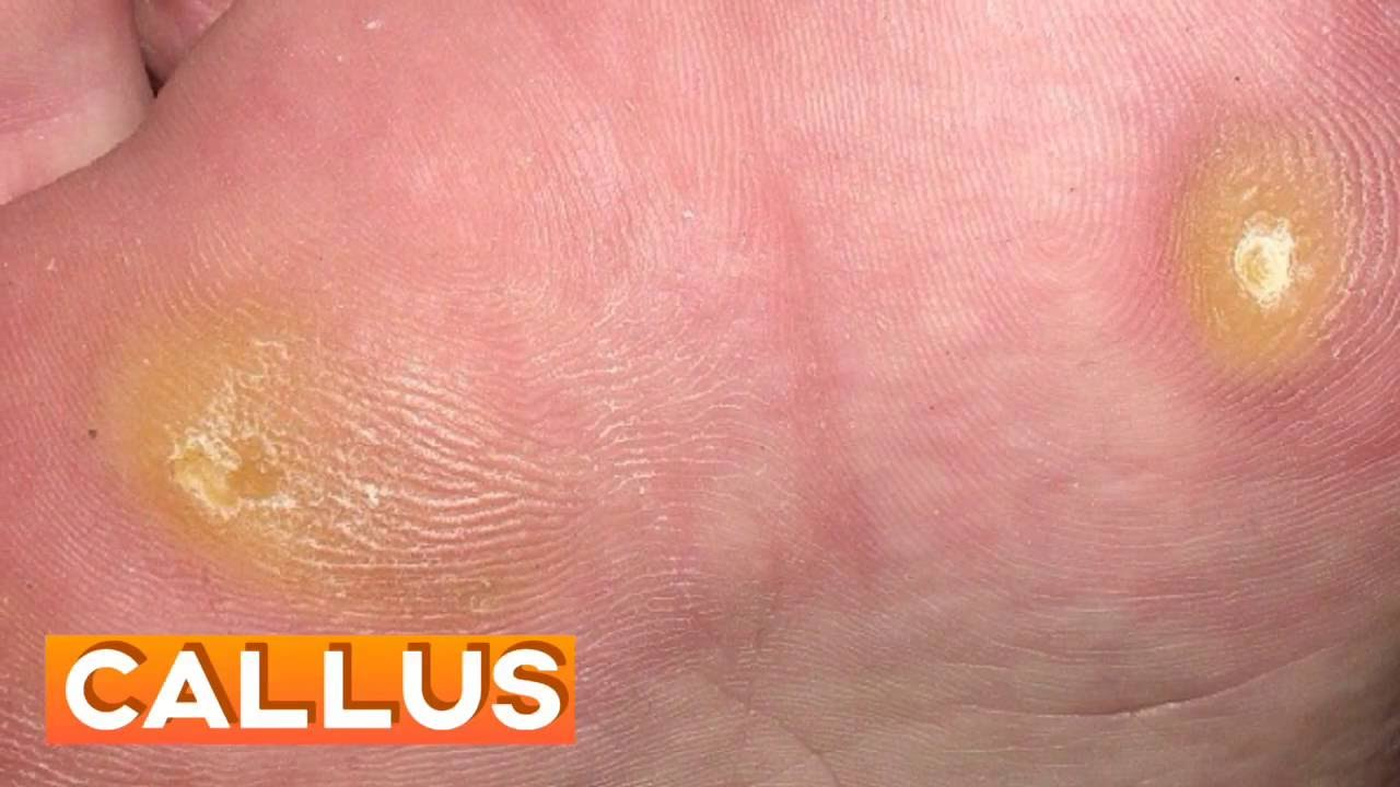 Foot wart vs callus