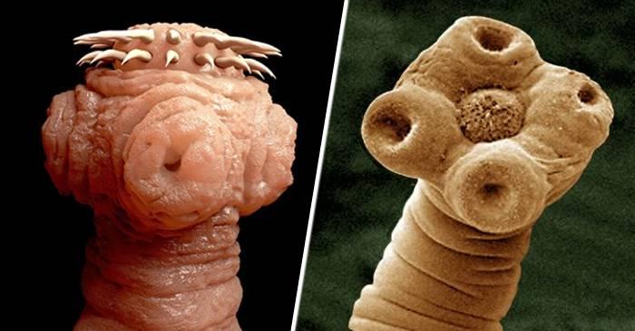 Viermi intestinali si paraziti