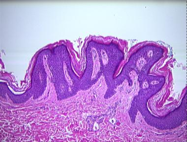 Confluent and reticulated papillomatosis cases