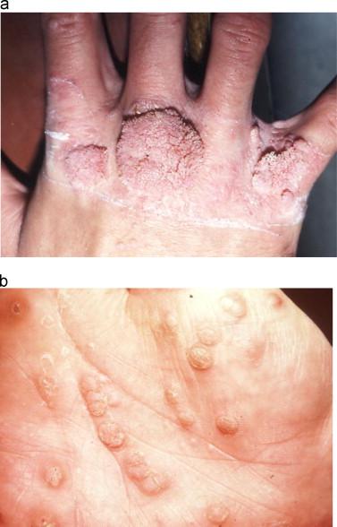 hpv skin problems pot ieși viermi fără medicamente
