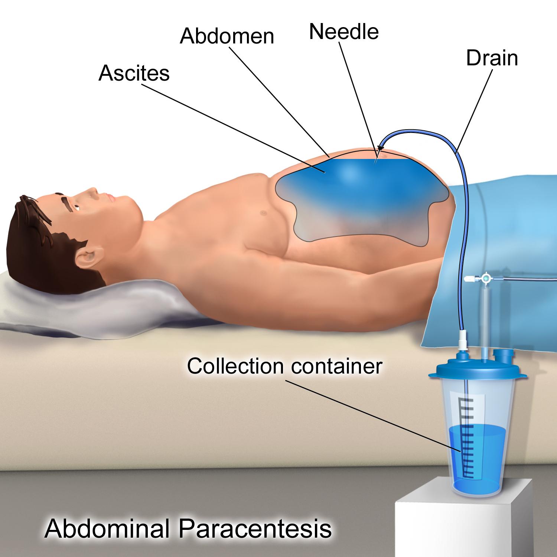papilomavirus cervical tratament negi cu otet