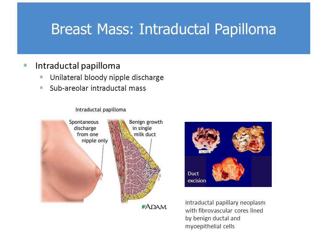 Treatment for duct papilloma - Ductal papilloma symptoms