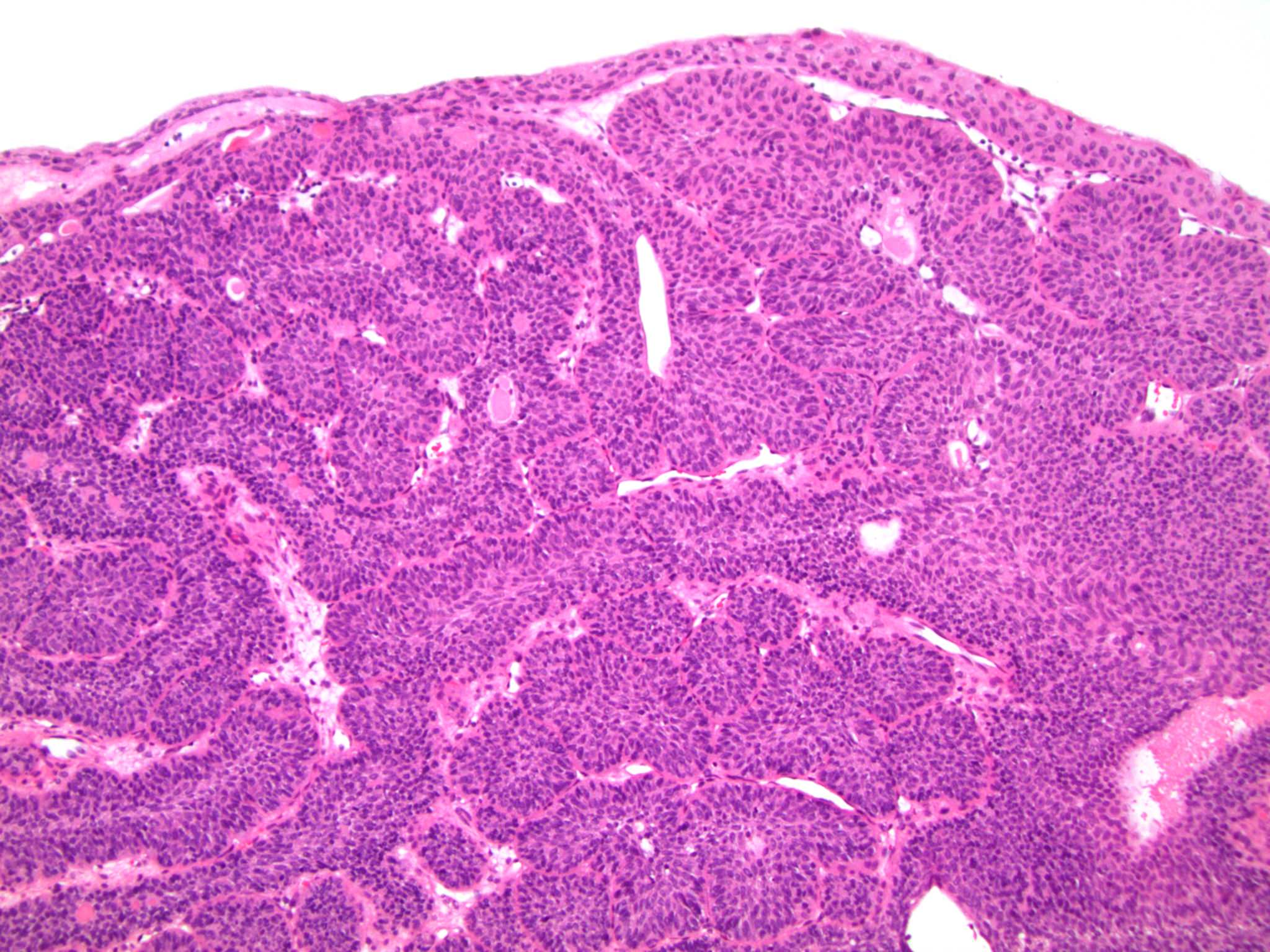 inverted papilloma bladder immunohistochemistry