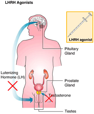 cancer hormonal prostata paraziti ve strevech priznaky