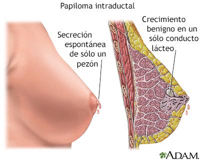 que es papiloma de seno medicamente anti vierme la om 1 comprimat